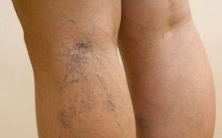 Влияние курения при варикозном расширении вен на ногах