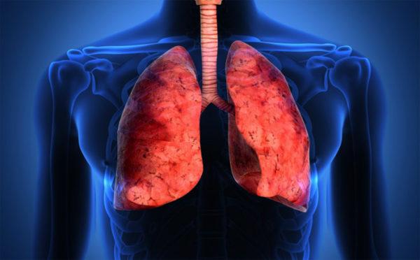 Курение может привести к раку легких