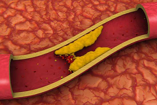Курение провоцирует отложения холестерина на стенках сосудов