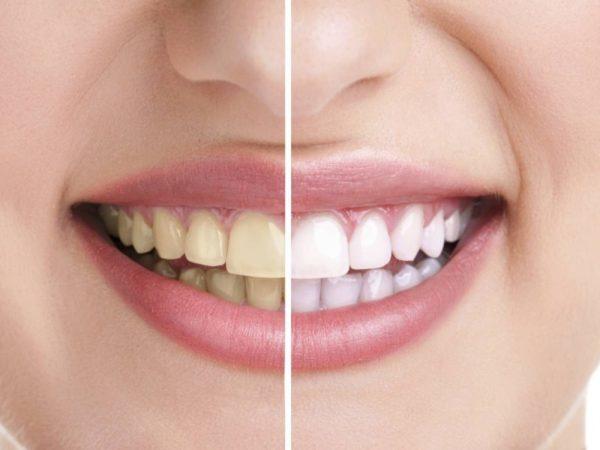 После отказа от курения восстановится цвет зубов